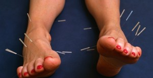 Understanding Acupuncture - Roots and Branches