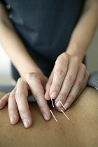 Acupuncture Scottsdale Chinese Medicine Chambers Clinic