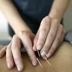 Understanding Acupuncture – Roots and Branches