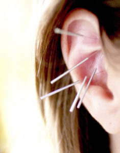Auricular Acupuncture